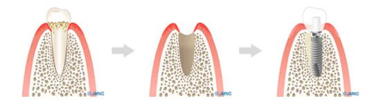 1日で歯が入る術式「抜歯即時インプラント」