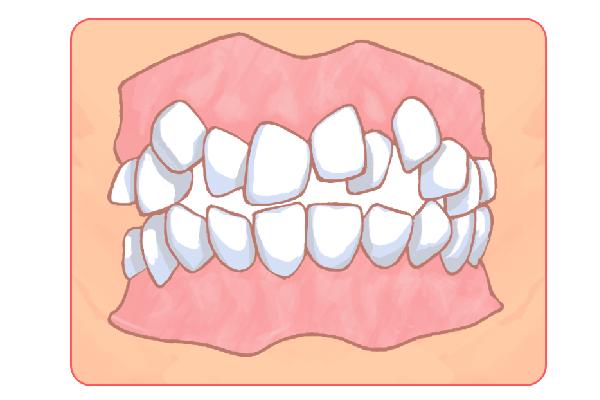 子供の歯並び矯正にも対応しています!